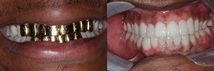Veneers, crowns, rct's