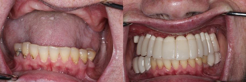 Full Mouth rehab, crowns, sinus lift, dental implants