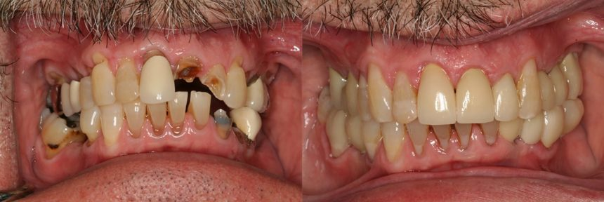 Full Mouth rehab, implants, crowns, fillings