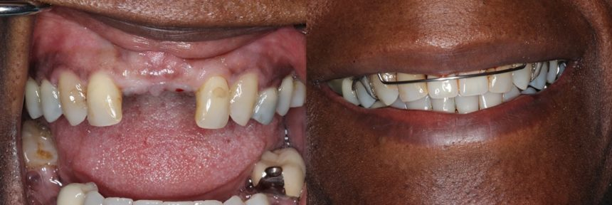Front Tooth Implants