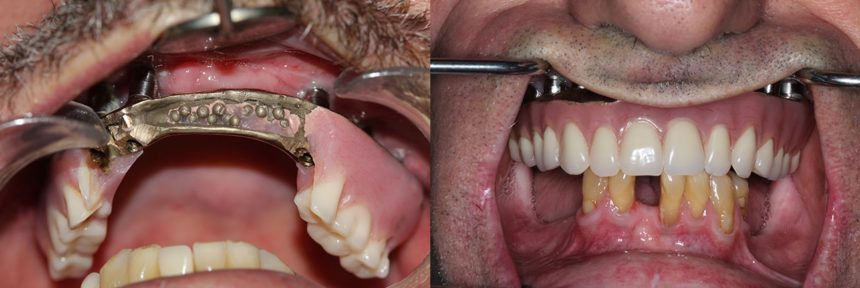 Removal of hybrid denture, added short implants and for denture stabilization