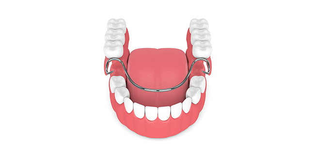 illustration depicting partial dentures