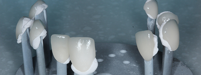 Brand new porcelain veneers ready to be used